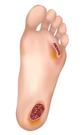 wound: Diabetic foot. Vector illustration.