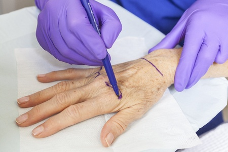 cosmetic surgery: A plastic surgeon using a pen to mark a senior female womans hand for surgery