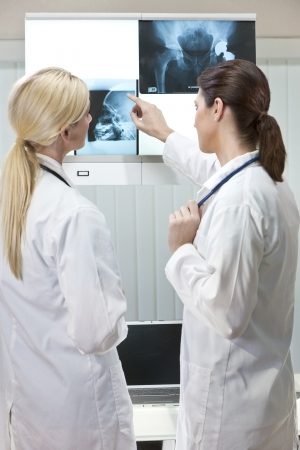 hip replacement: Two female medical doctors looking at x-rays of hip replacement and skull while using laptop in a hospital