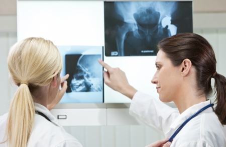 hip replacement: Two female women medical doctors looking at x-rays in a hospital