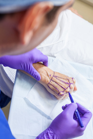 A cosmetic plastic surgeon doctor using a pen marking up the hand of a senior female woman patient in hospital or clinic before surgery