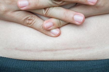 Close-up van vrouw die op haar buik donker litteken van een keizersnede toont.