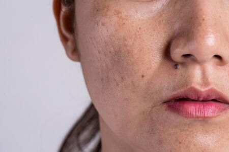 Woman with problematic skin and acne scars. Problem skincare and health concept. Wrinkles melasma Dark spots freckles dry skin and pigmentation on face asian woman. Banque d'images