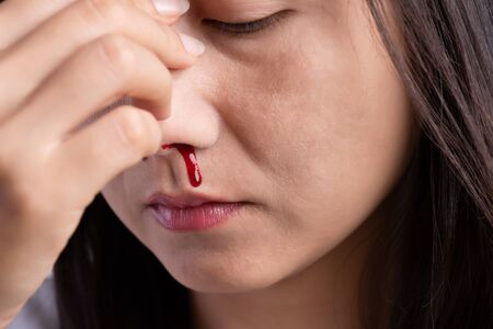 Nosebleed, a young woman with a bloody nose. Healthcare and medical concept.
