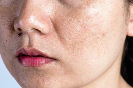 Donna con pelle problematica e cicatrici da acne. Problema cura della pelle e concetto di salute. Rughe Macchie scure lentiggini pelle secca e pigmentazione sul viso donna asiatica.