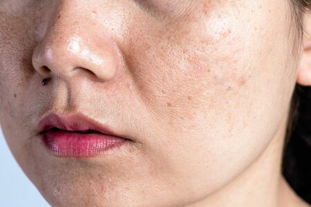 Woman with problematic skin and acne scars. Problem skincare and health concept. Wrinkles Dark spots freckles dry skin and pigmentation on face asian woman. Imagens