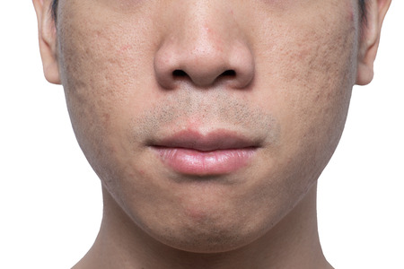 Close-up acne and scars on asian man face, isolated white background
