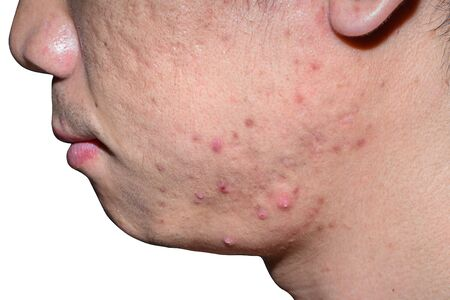 Close-up acne and scars on asian  face, isolated white background with