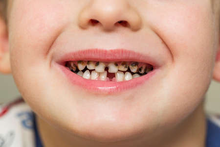 Kid patient open mouth showing cavities teeth decay. Teeth health care. Archivio Fotografico