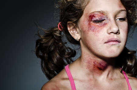 abuse: Injured child posing as victim of domestic violence Stock Photo