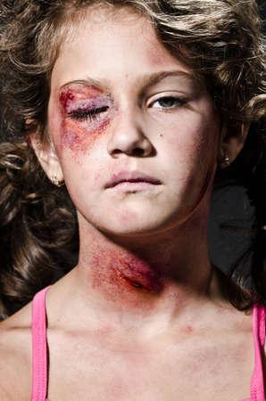 herida: Niño herido haciéndose pasar por víctima de la violencia doméstica