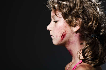 Injured child posing as victim of domestic violence photo