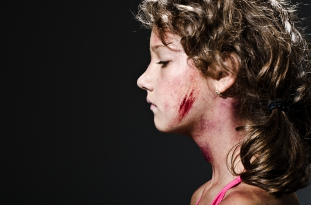child abuse: Injured child posing as victim of domestic violence Stock Photo