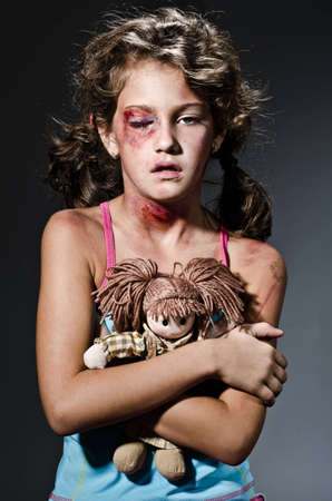 Injured child posing as victim of domestic violence Stock Photo