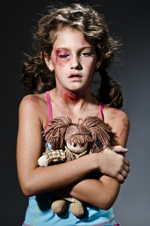 maltrato infantil: Niño herido haciéndose pasar por la víctima de la violencia doméstica