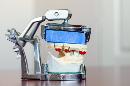 molares: Foto de un molde dental con poca profundidad de campo Foto de archivo