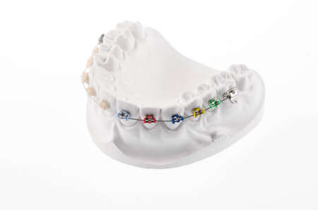 bracket: Dental soporte inferior llaves mand�bula modelo aislado en blanco