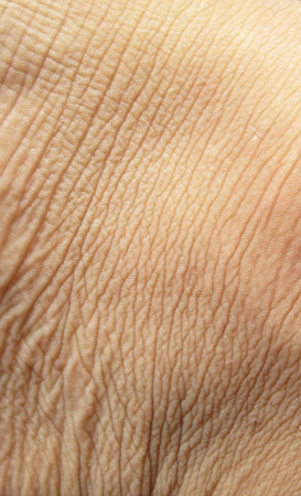 cancer foot: macro foot skin background