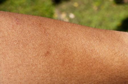 piel humana: la piel humana