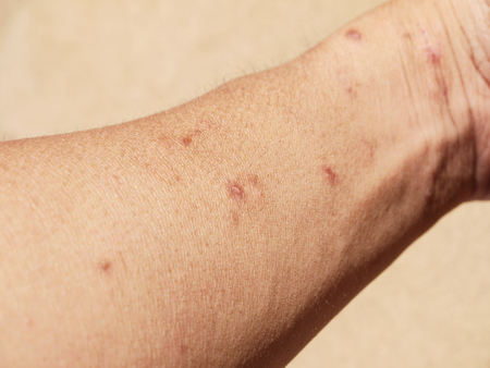lesions: Allergic skin lesions on the arms closeup Stock Photo