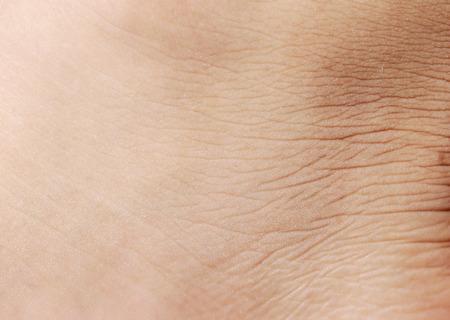 cancer foot: Closeup human skin texture