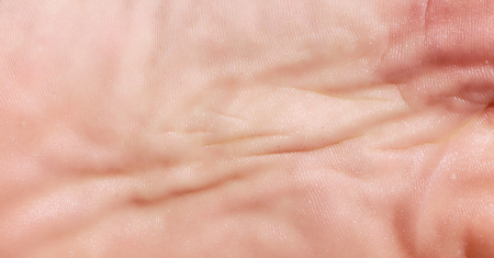 sole: foot sole skin closeup