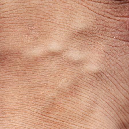 cancer foot: human skin texture