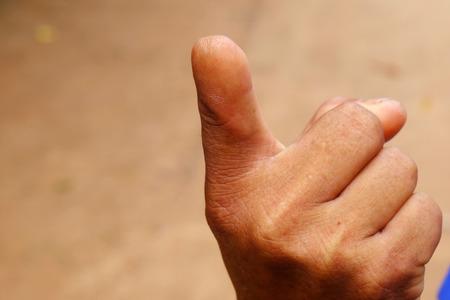 truncated: human finger truncated Stock Photo
