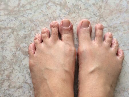 Peeling skin Caused by infection, rash on the feet, must be treated with medicine.