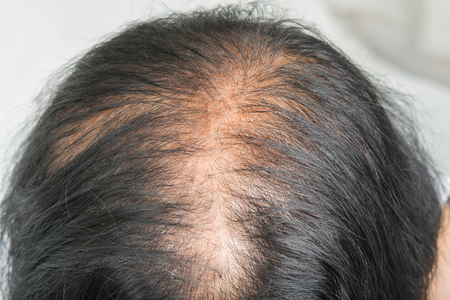 Thin  hair and scalp  and broken hair