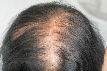 Dünnes Haar und Kopfhaut und gebrochenes Haar