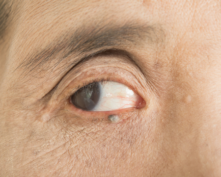 Abnormalities in the eyes Stock Photo