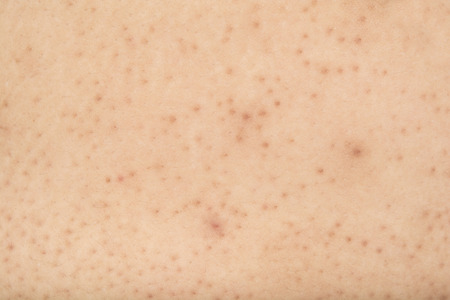 Pores on the body in women