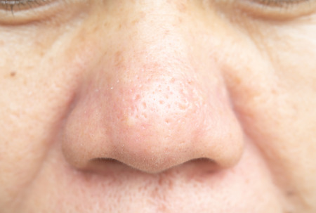 Pores on the nose and skin problems are not smooth. Banco de Imagens - 111008440