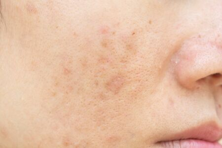 Acne scars and pores. Dark spots. Wrinkles and skin problems