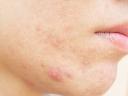 Acne scars and pores. Dark spots. Wrinkles and skin problems Pores and acne marks Facial skin problems and beauty Stockfoto