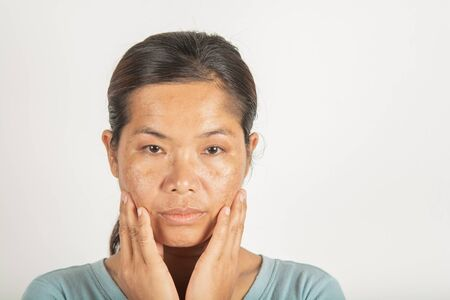 spot melasma dark and freckles facial treatment on face asian woman. and skin Problem
