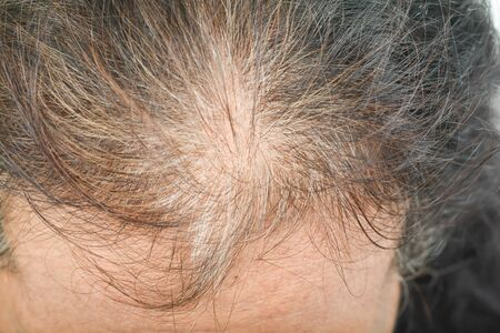 thin hair in women