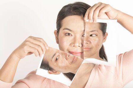 Melasma freckles and dark spots