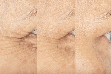 Wrinkles on the eyes