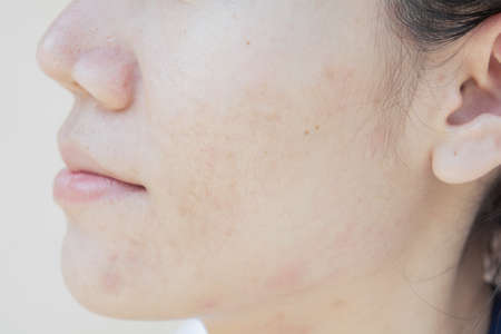 Dark spots and scar from Acne on face Stock Photo