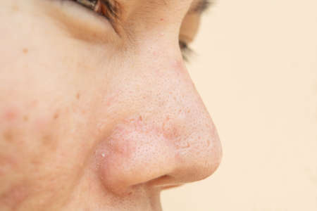 Acne Scars And Pores In The Nose Black Spots Wrinkles And Skin Stock Photo Picture And Royalty Free Image Image 151626348