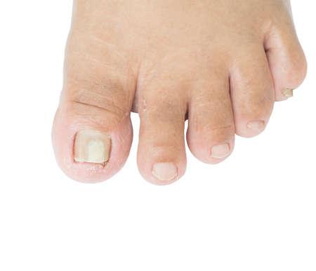 foot fungus Reklamní fotografie