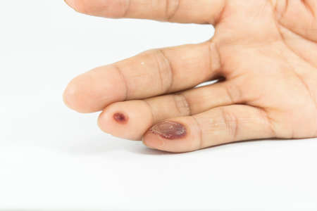 blisters on finger caused by electric shock