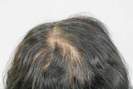 thin hair in women Stockfoto