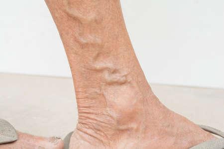 Varicose veins in old women Standard-Bild