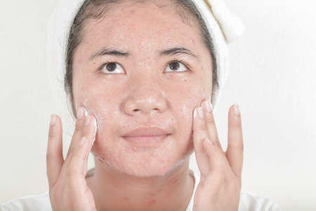 facial wash with acne