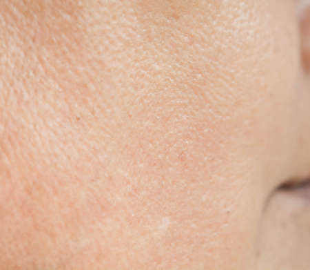 Pores on the face in women