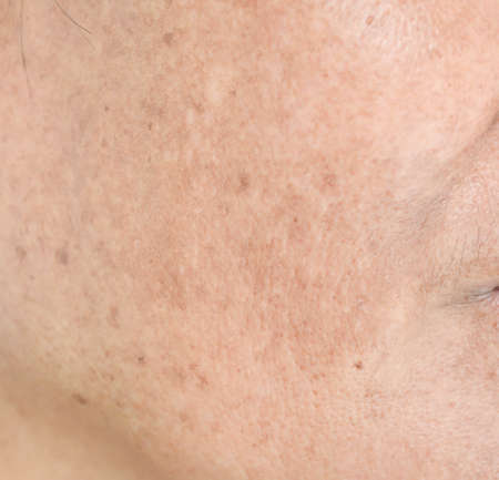 The freckles and freckles on the face. Banco de Imagens