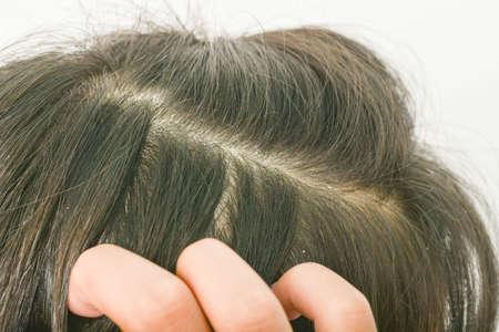 hair dandruff